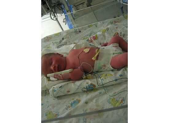 35-week-old-baby-in-nicu-due-to-hellp-syndrome